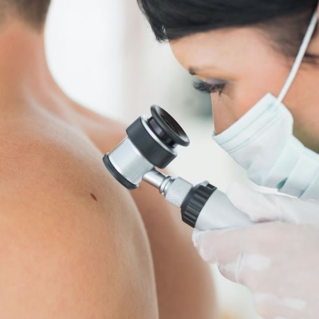 Câncer de Pele - Tratamento