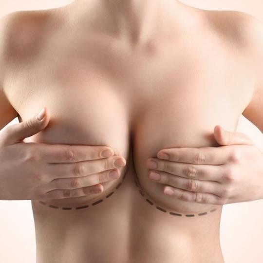 Médicos voltam a usar tecido mamário das pacientes na modelagem dos seios